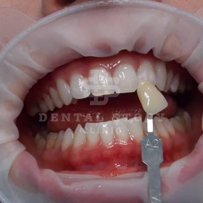 Отбеливание зубов ZOOM3 до и после. Стоматология Dental Story. Часть 4