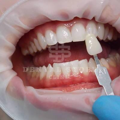 Отбеливание зубов ZOOM3. Стоматология Dental Story. Часть 2