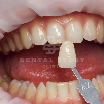 До отбеливания зубов. Стоматология Dental Story. Часть 1